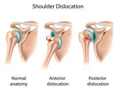 <i class='fa fa-lock' aria-hidden='true'></i> Shoulder Dislocation