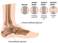 <i class='fa fa-lock' aria-hidden='true'></i> Anterior-Inferior Tibiofibular Ligament Injury / Syndesmosis injury