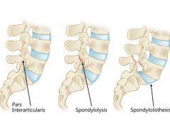 <i class='fa fa-lock' aria-hidden='true'></i> Stress Fracture of the Pars Interarticularis / Lumbar Spondylolysis