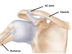 <i class='fa fa-lock' aria-hidden='true'></i> Acromioclavicular joint sprain (acute)